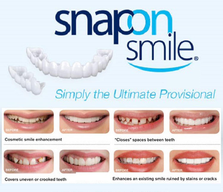 Denture Cleaner brands - Denture Care on sale, prices, set