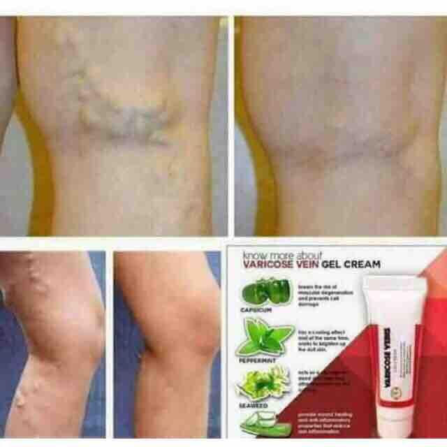 Varicose Veins Gel Cream Philippines