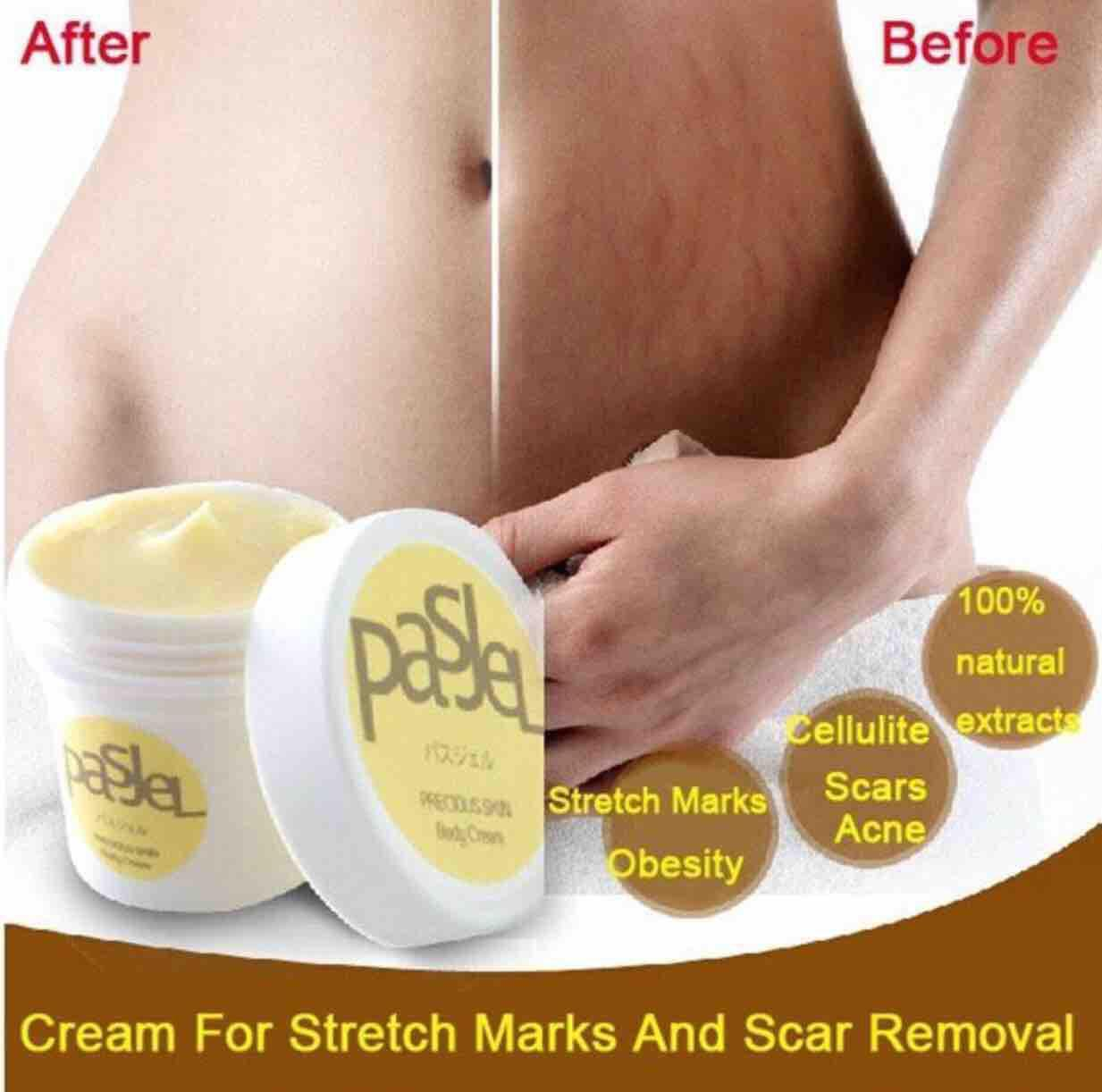 Scar Remover Brands Scar Creams On Sale Deals And Promos Online