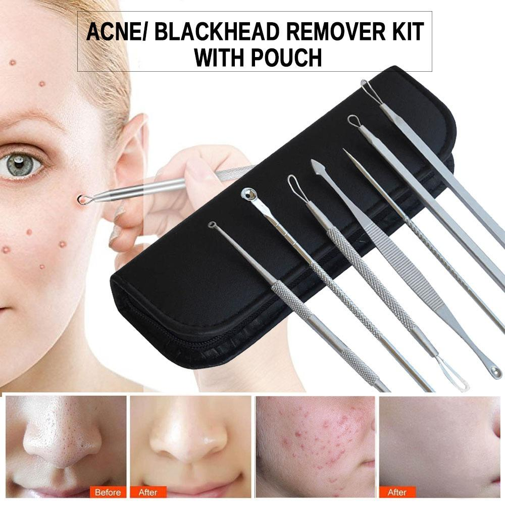 7Pcs Blackhead Acne Pimple Blemish Extractor Remover Needle Clipper Beauty Tool Kit Set Facial Pimple Tweezers Stainless Steel Blemish Extractor Set Philippines