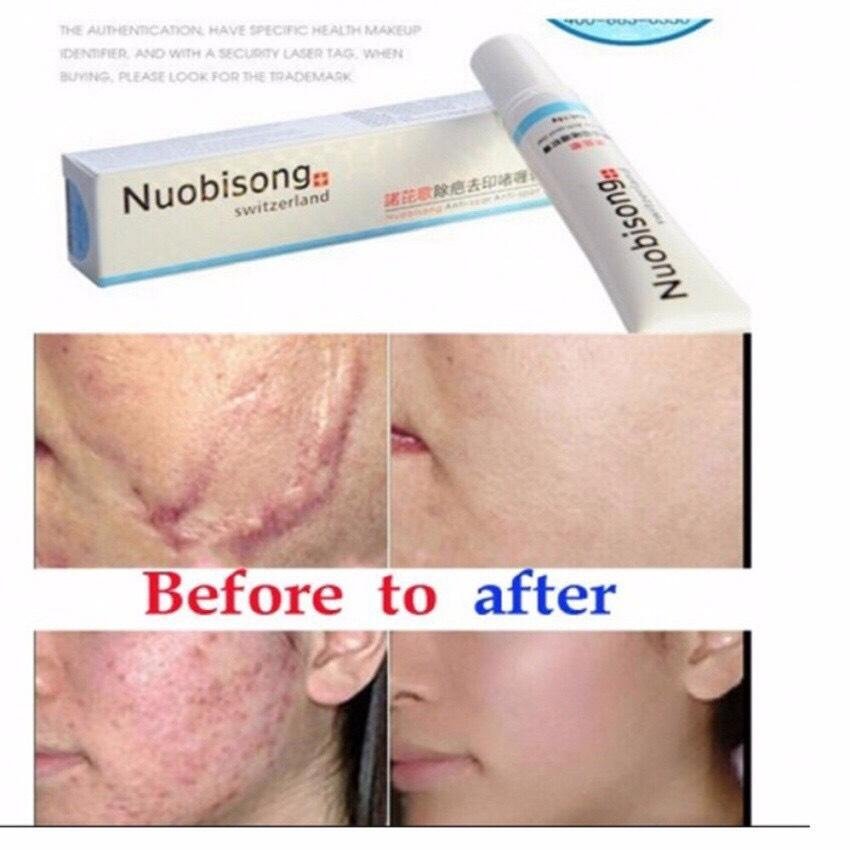 Nuobisong Scar Removal Cream Gel Acne Spot Stretchmarks Scar And