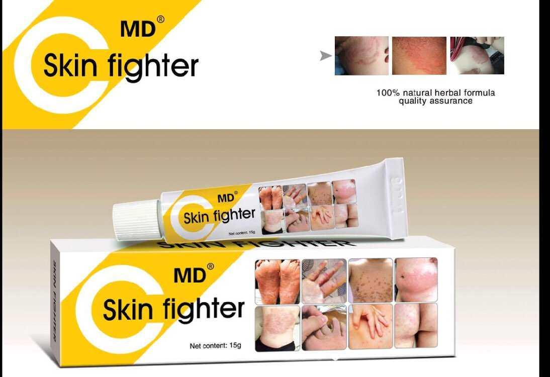 Ointments Brands Ointment Cream On Sale Prices Set Reviews In Bite Fighters Lotion Roll Of 2 Md Skin Fighter For Allergies