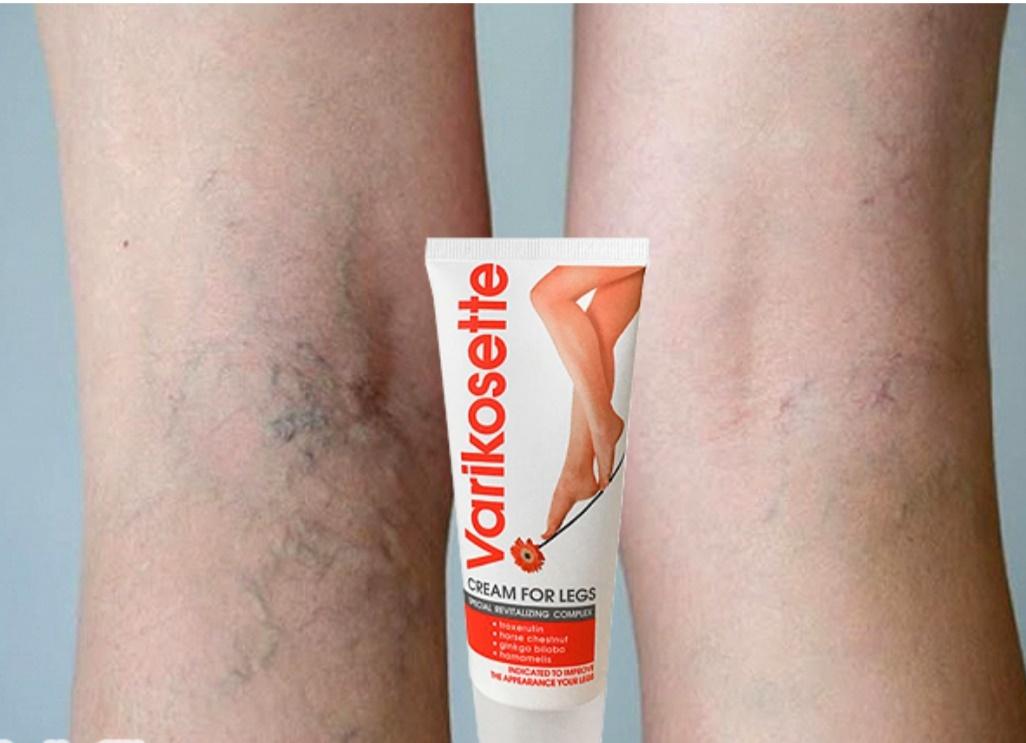 Varikosette Original Leg Cream Anti Varicose Veins Leg