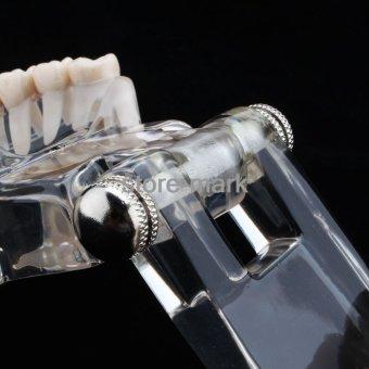 1PCS Dental Implant Disease Teeth Model with Restoration BridgeTooth Dentist for Medical Science Teaching NEW - intl - 4