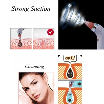 2017 New Blackhead Removal Machine 4 In 1 Diamond DermabrasionRemoval Scar Acne Pore Peeling Face Clean Vaccum Beauty Tool - intl - 4