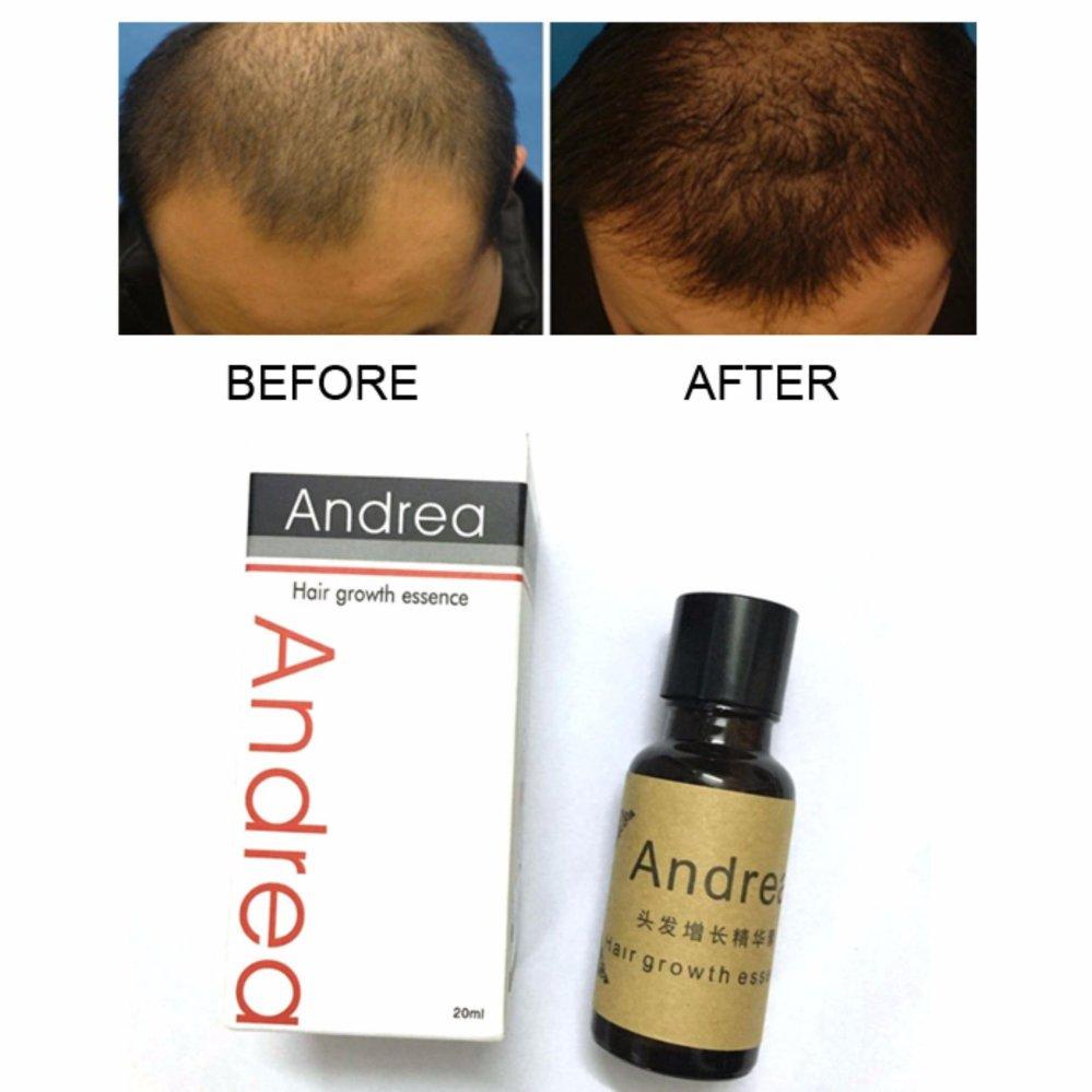 Hair Treatment Brands Hair Treatment For Damaged Hair On Sale - Custom vinyl decal application fluidhow to make decal application fluidhair loss surgery