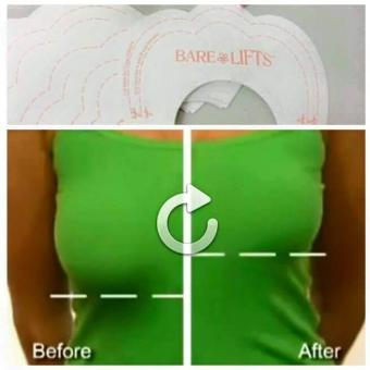 Bare Lifts Instant Breast Lift - 3