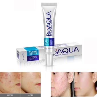 Effective Face Skin Care Removal Cream Acne Spots Scar BlemishMarks Treatment - intl Price Philippines