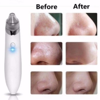 Facial Skin Care Acne Blackhead Remover Vacuum Suction Pore CleanMachine Rose White - intl