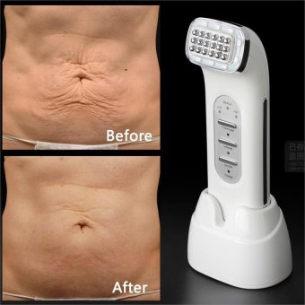 Real Remove Wrinkles Dot Matrix Facial Thermage Radio FrequencyLifting Face Lift Body SKin Care Beauty Device 110-240V - intl Price Philippines