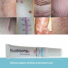 Scar Removal Cream Gel Acne Spot Stretchmarks Scar And Keloid Treatment Switzerland Philippines