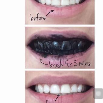 Stache Activated Charcoal Natural Teeth Whitener - 3