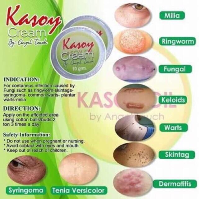 Kasoy Cream Warts Remover 10grams